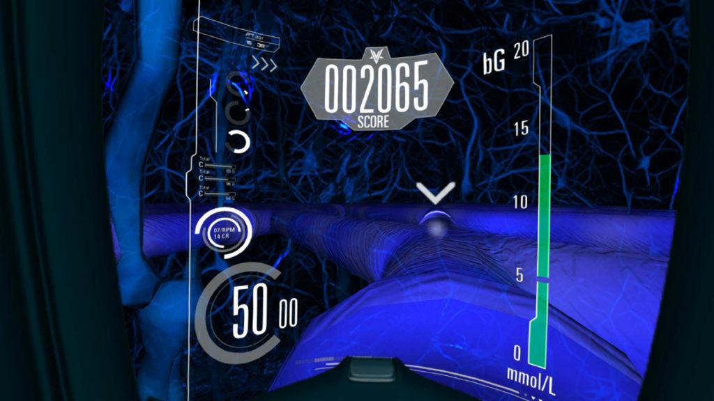 Diabetes Voyage Virtual Reality VR Game Screenshot