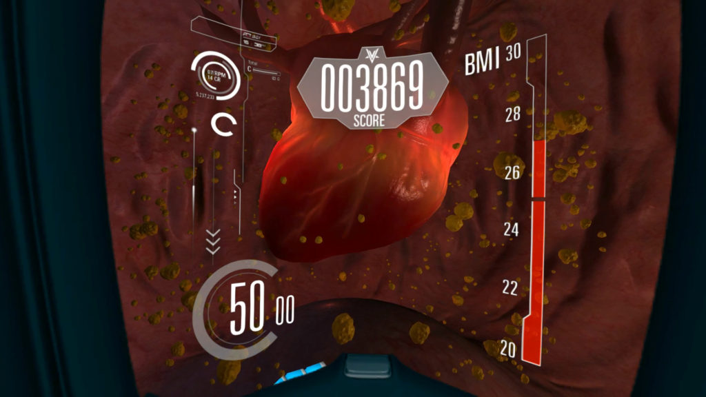 Oculus VR Diabetes Voyager Game MoA Medical Heart with graphic overlay Body mass index and score number