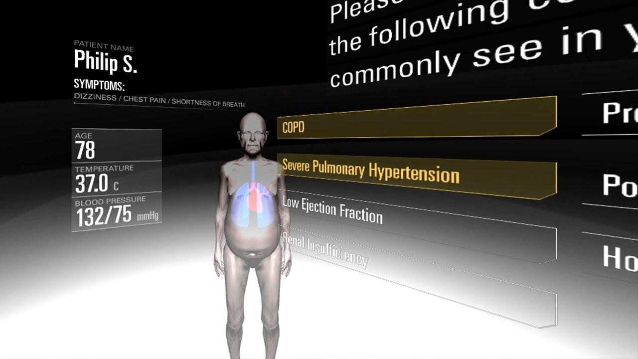 VR 3D model of naked elderly man with lungs and heart visible in see through body and graphic overlay, severe pulmonary hypertension
