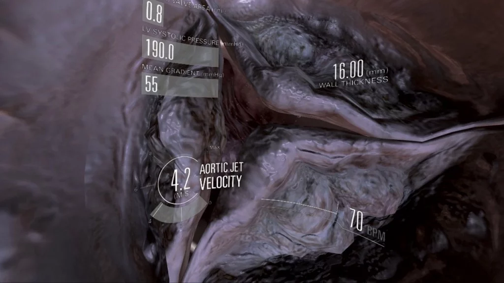 VR heart valve with graphics overlay displaying LV systolic pressure, aortic jet velocity and wall thickness
