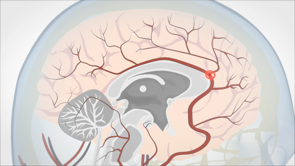 How A Stroke Impacts The Brain, 2D Illustration of vessels within the brain highlighting and blockage